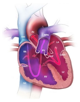 Heal Within Malaysia-Edu-Heart-Disease-What is heart atrioventricular septal defect