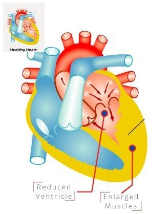 Heal Within Malaysia-Edu-Heart-Disease-What is heart disease-hypertrophic cardiomyopathy
